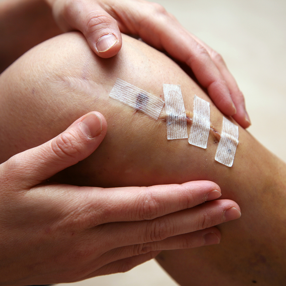 Pre & Post Operative Physiotherapy
